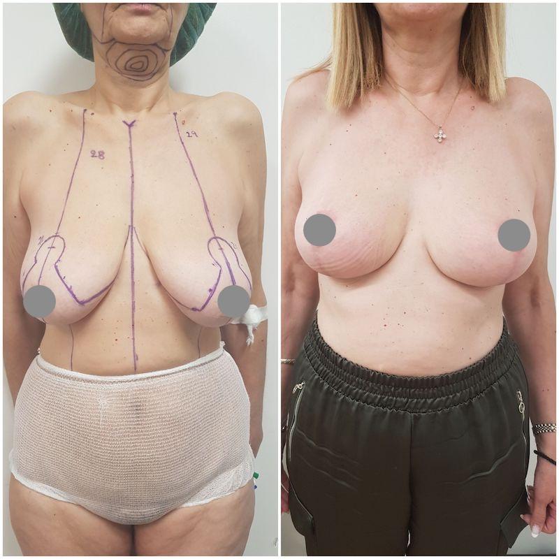 Ανόρθωση Στήθους πριν και μετά 2