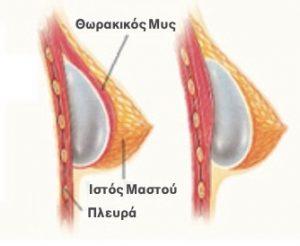 τοποθέτηση-ενθέματος-στήθους