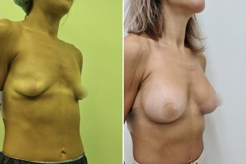 πλαστική στήθους πριν και μετά 1