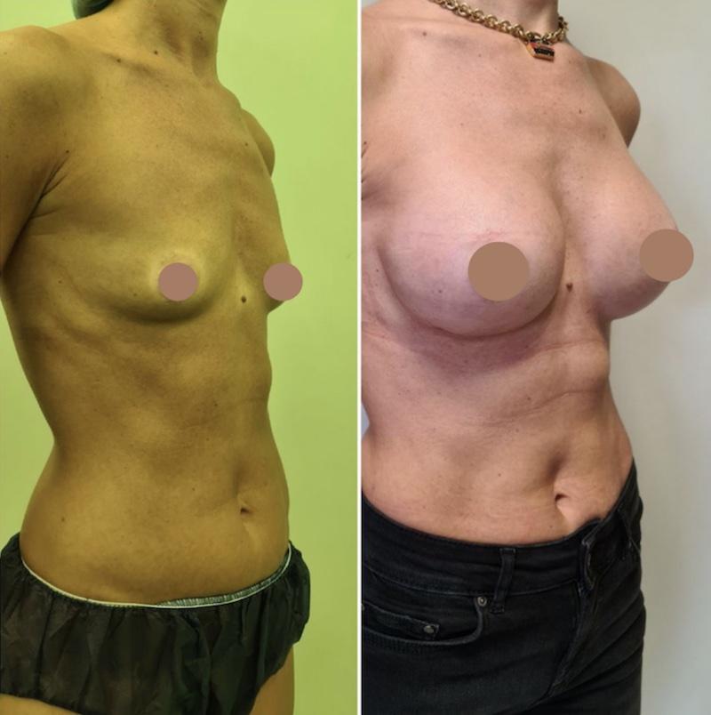 πλαστική στήθους πριν και μετά 2