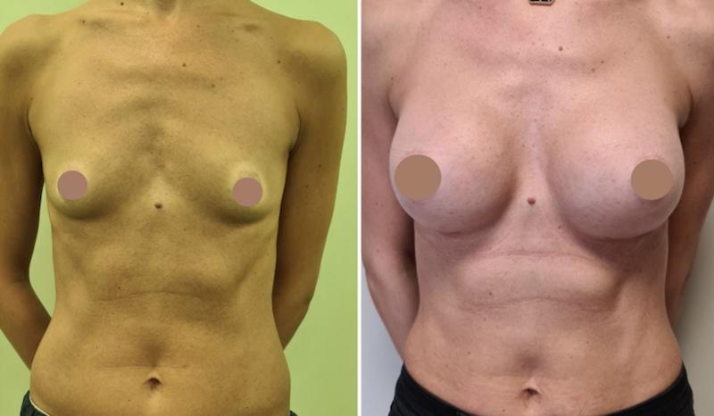 πλαστική στήθους πριν και μετά 3